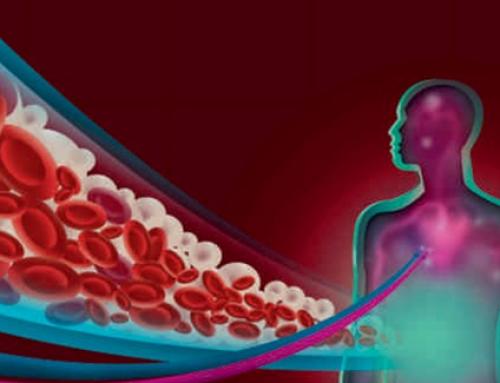 Vodiči kliničke prakse o peri i postoperativnoj njezi arteriovenskih fistula i graftova za hemodijalizu kod odraslih